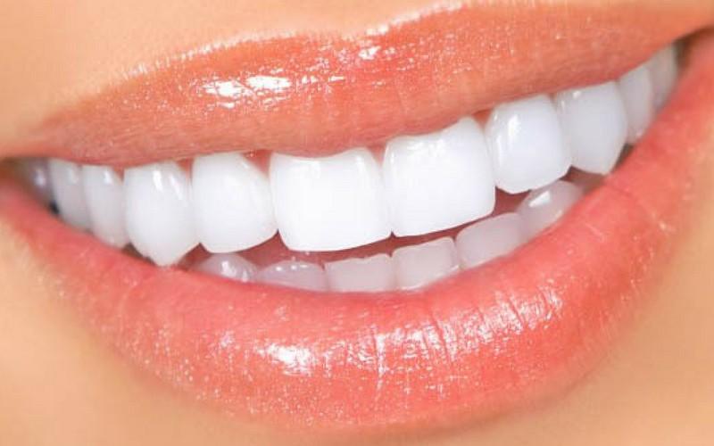 Siete alimentos malos para los dientes