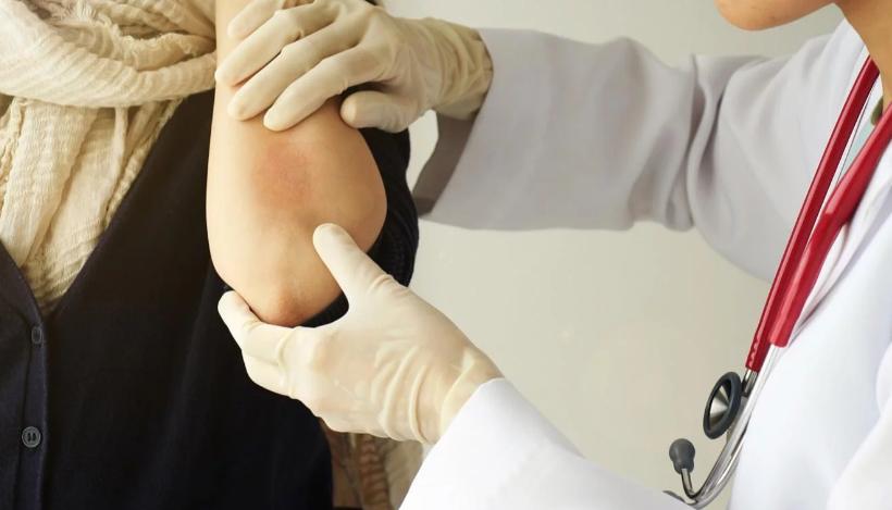 Campaña de detección gratuita y concientización sobre psoriasis